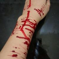 دست تیغ خورده درناجون
